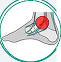 icone ilustrativo para tendinites na região do tornozelo e pé